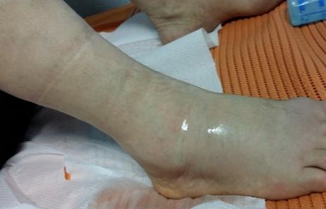 PRP-terapija skočnog zgloba